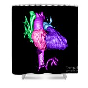 Color Enhanced 3d Cta Of Heart Shower Curtain