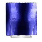 Knees Shower Curtain