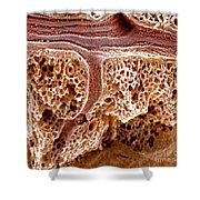 Mouse Lung, Sem Shower Curtain by Science Source