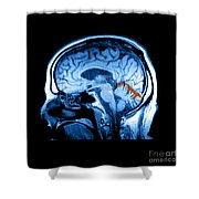 Mri Of Alcoholism Related Vermian Shower Curtain