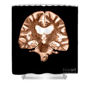 Mri Of Brain With Alzheimers Disease Shower Curtain
