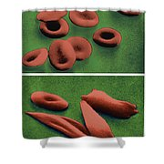 Normal And Sickle Red Blood Cells Shower Curtain