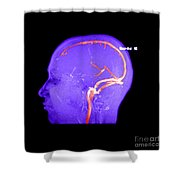 Normal Venous Anatomy Shower Curtain