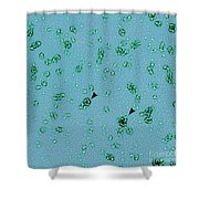 Pmpd Protein, Chlamydia Trachomatis Shower Curtain