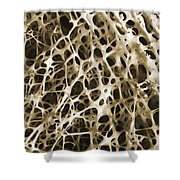 Sem Of Human Shin Bone Shower Curtain by Science Source