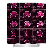 Mri Of Normal Brain Shower Curtain
