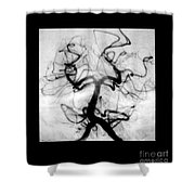 Angiogram Of Embolus In Cerebral Artery Shower Curtain