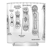 Bone Growth Shower Curtain