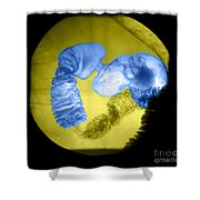 Distal Stomach And Duodenum Shower Curtain