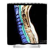 Herniated Disc In Cervical Spine Shower Curtain