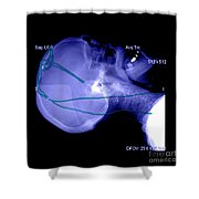 Lateral X-ray Of Deep Electrodes Shower Curtain