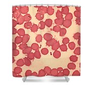 Yersinia Pestis Shower Curtain