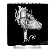 3d Ct Reconstruction Of Heart Shower Curtain