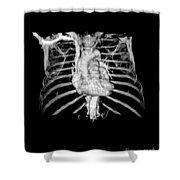 3d Cta Of Heart And Chest Shower Curtain by Medical Body Scans