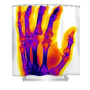 Finger Fracture Shower Curtain