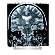 Human Brain Shower Curtain