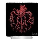 Intracranial Ct Angiogram Shower Curtain