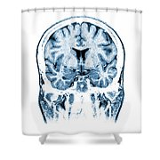Normal Coronal Mri Of The Brain Shower Curtain