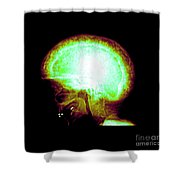 Pagets Disease Shower Curtain