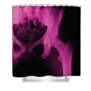 X-ray Of The Hip Shower Curtain