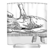 A Handbook Of Morbid Anatomy Shower Curtain