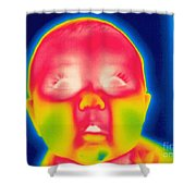 A Thermogram Of A 5 Month Old Baby Shower Curtain