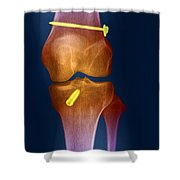 Acl Knee Repair X-ray Shower Curtain