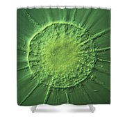 Actinophyrs Lm Shower Curtain