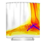 Ankle Fracture Shower Curtain