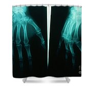 Arthritic & Normal Hand Shower Curtain