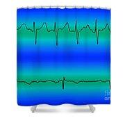 Atrial Fibrillation & Normal Heart Beat Shower Curtain