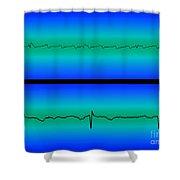 Atrial Flutter & Normal Heart Beat Shower Curtain