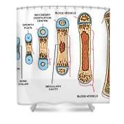 Bone Growth Shower Curtain by Science Source