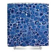 Bone Marrow Shower Curtain