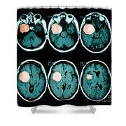 Brain Tumor Shower Curtain