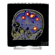 Brain Tumors Shower Curtain