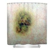 Bruise Shower Curtain