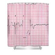 Cardioversion, 1 Of 2 Shower Curtain