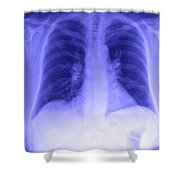 Chest X-ray Shower Curtain