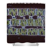 Conjugation In Spirogyra Algae Lm Shower Curtain