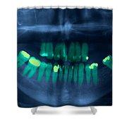 Dental X-ray Shower Curtain