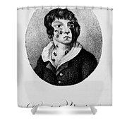Development Of Smallpox Shower Curtain by Science Source