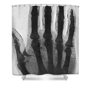 Early X-ray, 1897 Shower Curtain