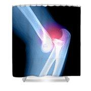 Elbow Injury Shower Curtain