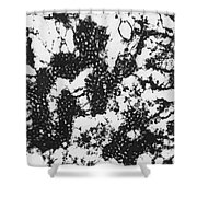 Foot And Mouth Disease Shower Curtain