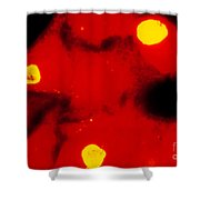 Lm Of Chlamydia Trachomatis Infection Shower Curtain