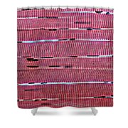 Lm Of Skeletal Muscle Shower Curtain