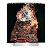 Lung Cancer Shower Curtain