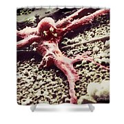 Malignant Cancer Cell Shower Curtain