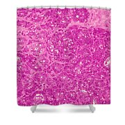 Mammary Gland Lm Shower Curtain